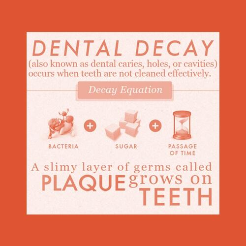 preventing-tooth-decay-dental-care-tips