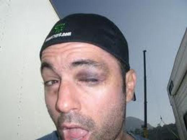 rogan black eye