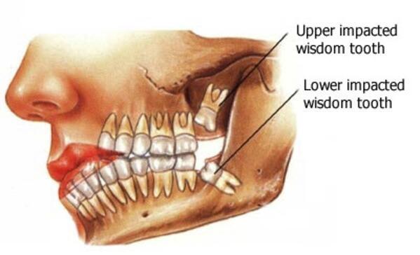 wisdom teeth 01 en1