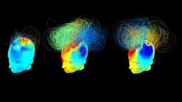 Spectral Signatures of Reorganised Brain Networks in Disorders of Consciousness