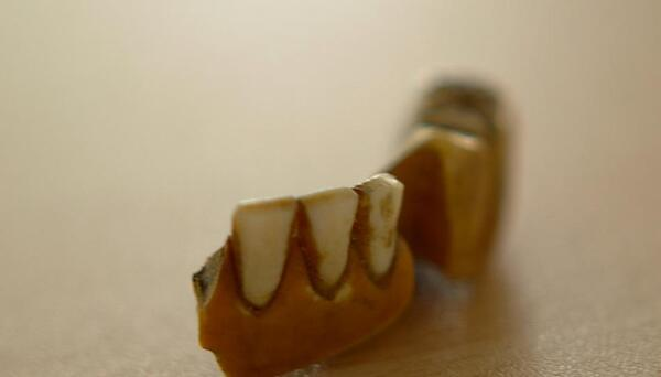 human-teeth-dentures